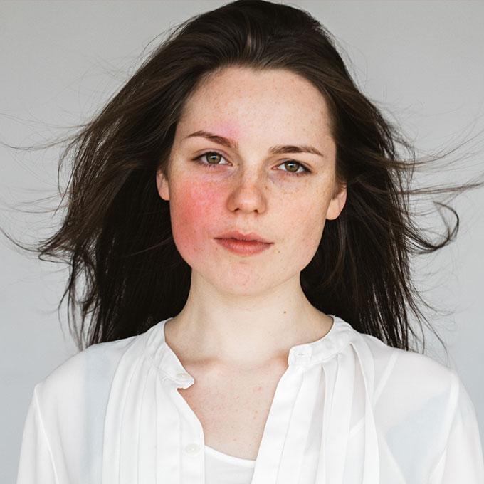 התמודדות עם עור אדמומי